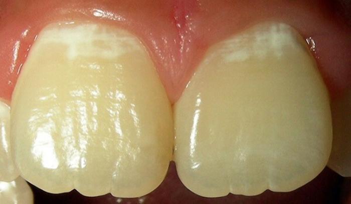 Рн зубного налета