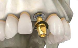 Имплантация зубов: этап 2