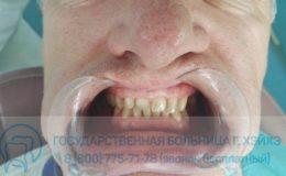 58. Борис — зубы до