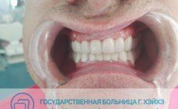 58. Борис — зубы после