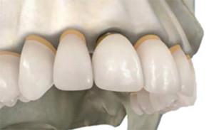 Имплантация зубов: этап 3